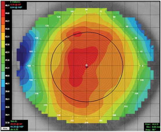 http://www.otticasilvestri.it/wp-content/uploads/2016/06/topografia-corneale.jpg